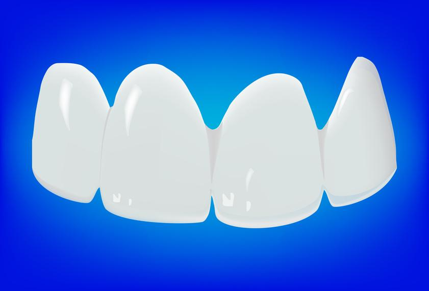 Implant dentaire en porcelaine